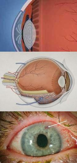 Симптомы внутриглазного давления у женщин