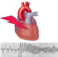 Причины боли в сердце