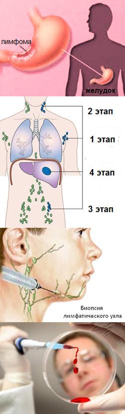 Лучевая терапия при лимфоме головного мозга