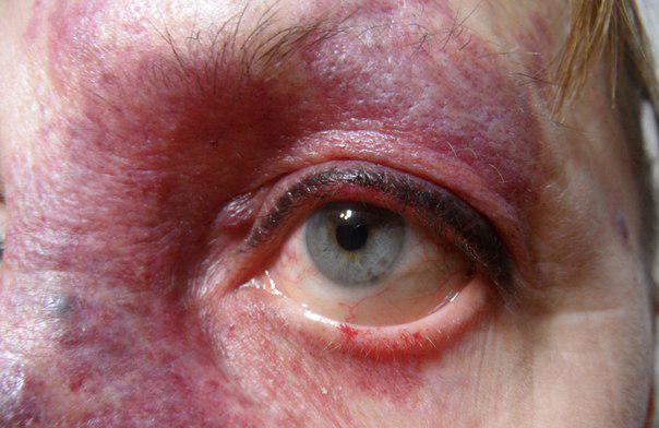 Головная боль в затылочной части головы у пожилых