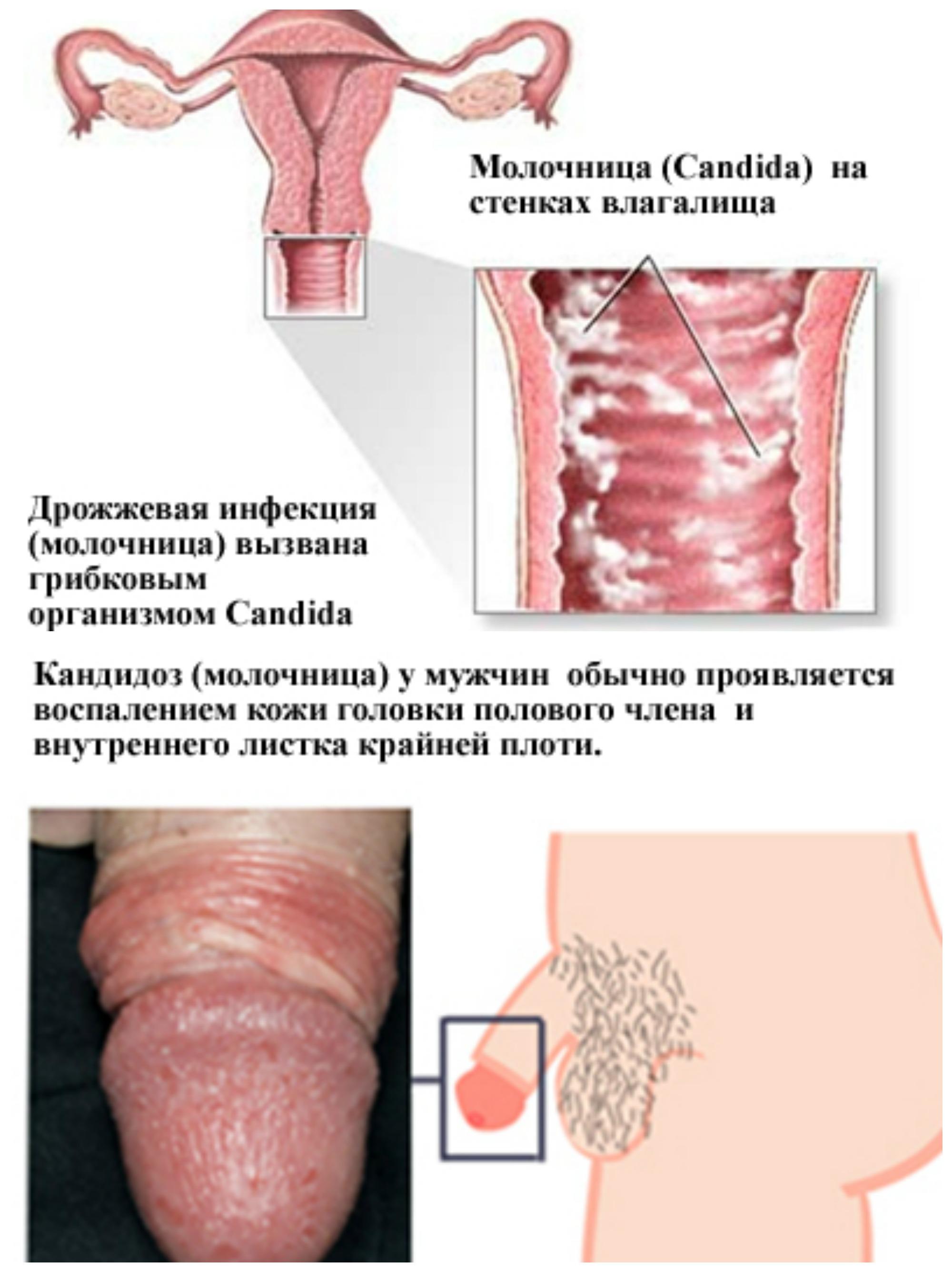 Тонзиллит и оральный секс 9 фотография