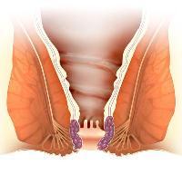 Сосуды и простатита