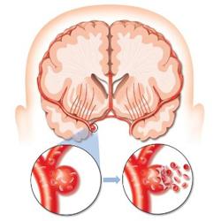 Аневризма сосудов головного мозга - осложнения, диагностика, лечение и профилактика патологии