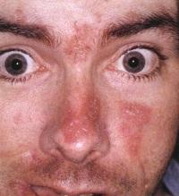 Себорейный дерматит на голове лечение народными средствами