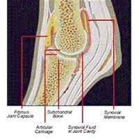 Дипроспан от болей в суставах