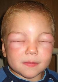 Аллергический отек век лечение