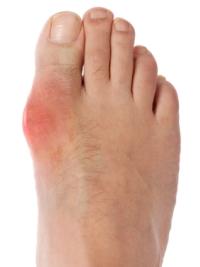 Гнойный артрит заболевание суставов с опасными осложнениями