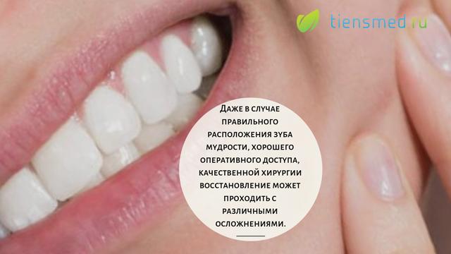 Осложнения после удаления зуба мудрости верхней челюсти
