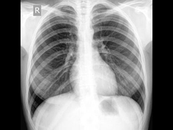 Рентген легких: что показывает, как часто можно делать, где сделать, как делают?