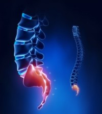 Лечение боли ниже поясницы у женщин зона крестца