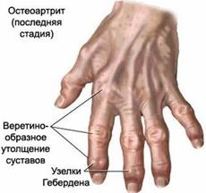 Артрит: признаки, виды, лечение