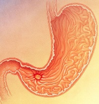 Что такое Хеликобактер пилори и какие заболевания она вызывает?