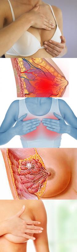 Почему болит левая грудная железа и грудина у женщин
