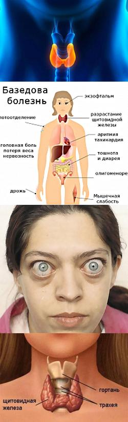 Болезнь Грейвса – причины, симптоматика и лечение
