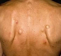 удаление кисты на спине