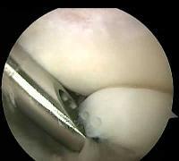 Лапароскопическая операция на коленном суставе