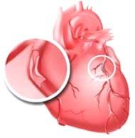 Причины ишемического заболевания сердца