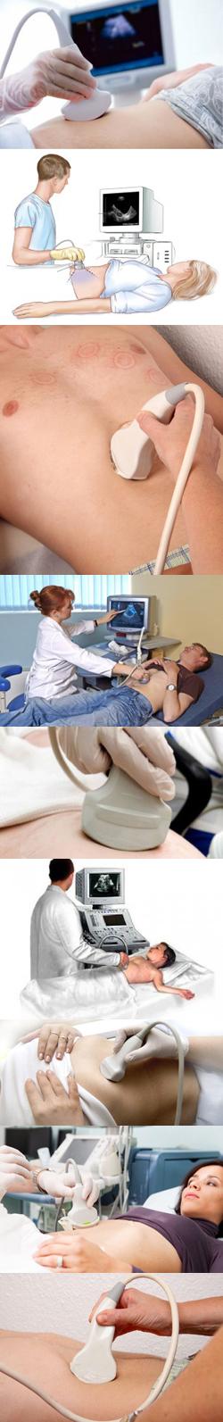 УЗИ брюшной полости. Показания, противопоказания, методика проведения. Подготовка к УЗИ брюшной полости