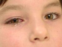 От чего краснеют глаза у взрослого