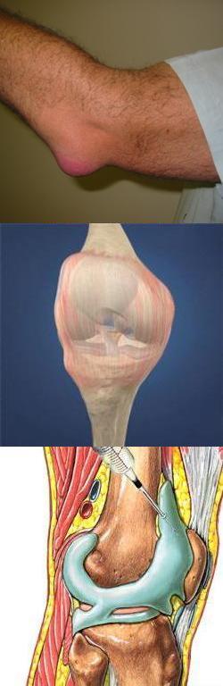как лечить синовит коленного сустава отзывы