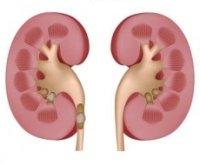 Пояснично-крестцовые боли - Болезни в гинекологии