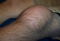 Что означают отеки ног