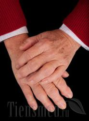 Ревматоидный артрит - симптомы и лечение, диета