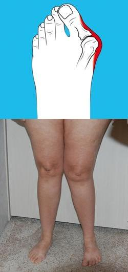 Вальгус большого пальца ноги осложнения и профилактика