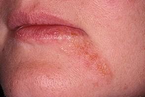 Болезни кожи (рук, головы, лица, ног): симптомы, самые страшные кожные болезни человека