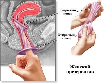 женский презерватив. фото