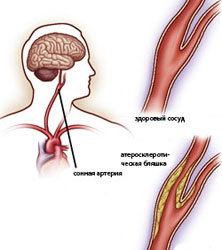 Атеросклероз – заболевание сосудов головного мозга
