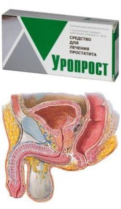 Предстательная железа ретроградная эякуляция