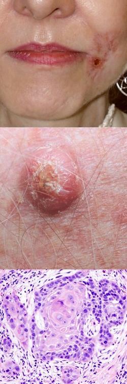 Плоскоклеточный рак кожи, гортани, желудка, пищевода, легкого ...