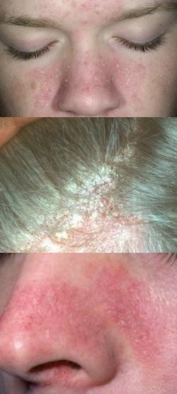 Себорея - лечение, симптомы, причины