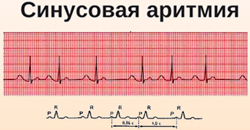 Реабилитация после установки кардиостимулятора в Москве — цены на услуги
