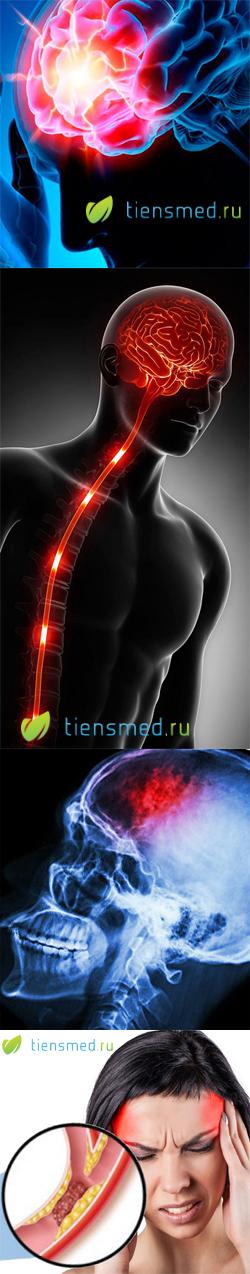 Ишемический инсульт головного мозга: виды, симптомы, диагностика, прогноз, лечение и реабилитация