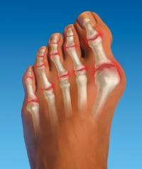 Боль в суставах на больших пальцах ног оплата операций коленного сустава в мед учрежд алма аты казахстана