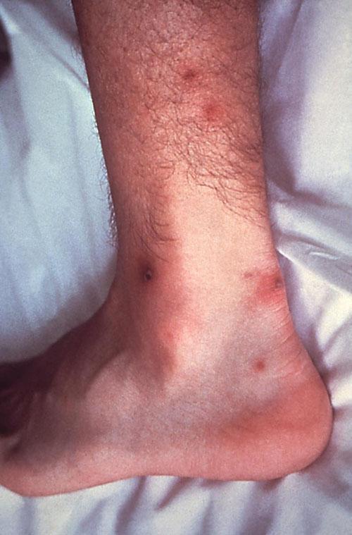 Гонорея, поражение суставов лечение больных коленных суставов