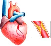 Щемит и колет взаимосвязь болей в сердце с уровнем артериального давления
