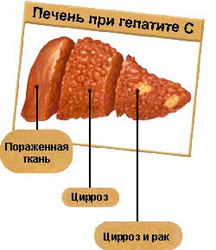 Гепатит с насколько он опасен как с