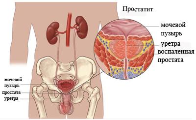 лечение простатит хламидиоз у