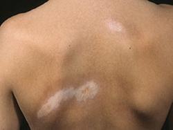Как называется врач который проверяет кожу