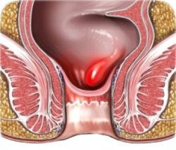 Геморрой и его симптомы. Лечение геморроя. Геморроидэктомия