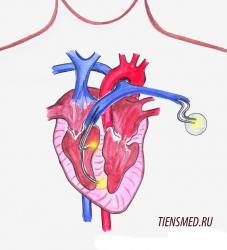 схема установки кардиостимуляторов
