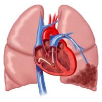 Диета при сахарном диабете и сердечной недостаточности