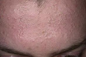 Гниение кожи как называется