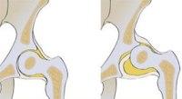 Дисплазия тазобедренного сустава у детей до и после года: симптомы и лечение