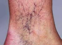 Эхосклеротерапия варикозных вен нижних конечностей