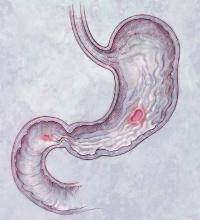 Отрыжка и тошнота при беременности