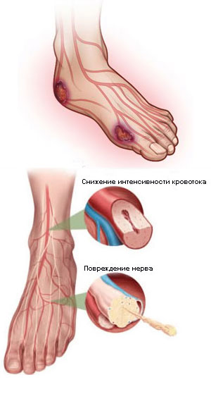 Нога горит огнем ниже колена лечение
